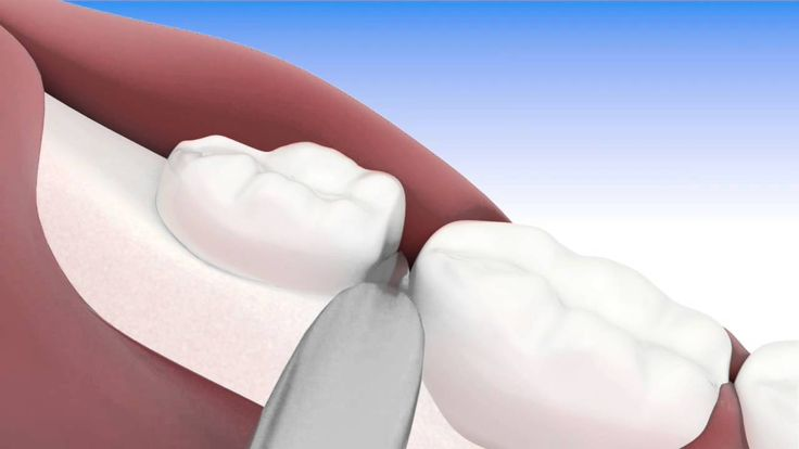 Exodoncia tercer molar semi incluido - Dentalink Software