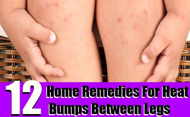 12 Home Remedies To Get Rid Of Heat Bumps Between Legs