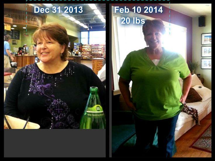 band surgery weight loss