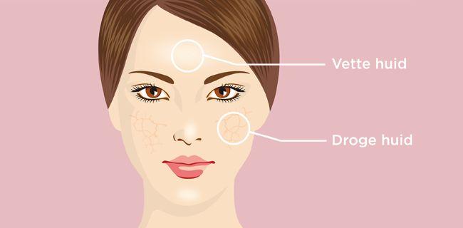 Dr. Jetske Ultee | De gecombineerde huid #infographic #illustratie #huidtype