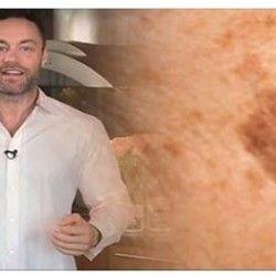 Известный дерматолог говорит: избавьтесь от коричневых пятен на лице с помощью этого средства!   Golbis