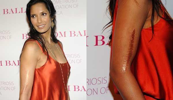 padma lakshmi scar - Google Search