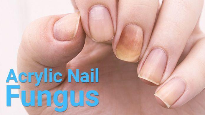 Nail Fungus Acrylic Nails Pictures In 2020 Nails After Acrylics Nail Fungus Treatment Artificial Nails