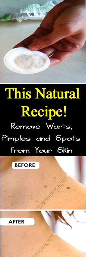 Remove Warts, Pimples and Spots from Your Skin with This Natural Recipe!