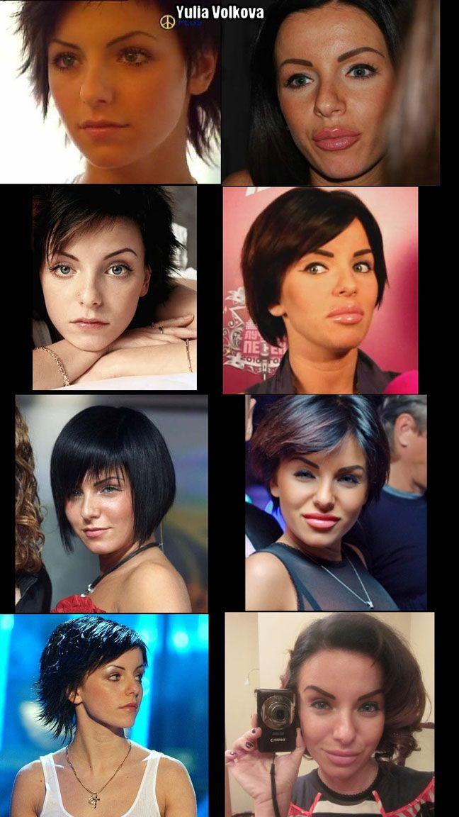 Norm Macdonald Plastic Surgery: Facelift, Botox, Before ...