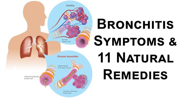 Bronchitis is an inflammation of the bronchial tubes, which carry air to and from the lungs. Acute bronchitis usually develops from a cold or another respiratory
