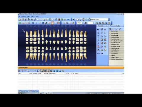 Supernumerary Teeth Youtube Dentrix Does It Videos