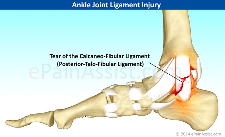 Ankle Joint Ligament Injury Read: http://www.epainassist.com/sports-injuries/ankle-injuries/ankle-joint-ligament-injury