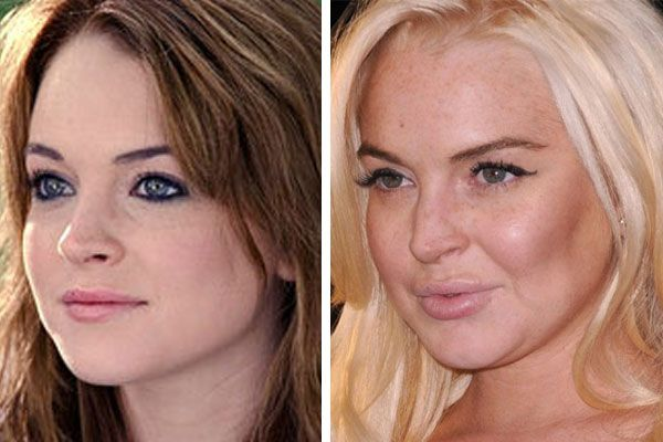 Lindsay Lohan. Plastic surgery nightmare!! Ew