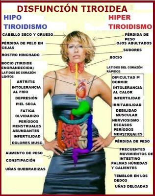 Hipotiroidismo: la glándula tiroides produce menos hormonas T3  y T4 (las cuales ayudan en la regulación del metabolismo basal) Hipertiroidismo: La glándula tiroides produces mas T3 y T4, por lo tanto hay pérdida de peso. mientras que en hipotiroidismo hay un incremento de peso