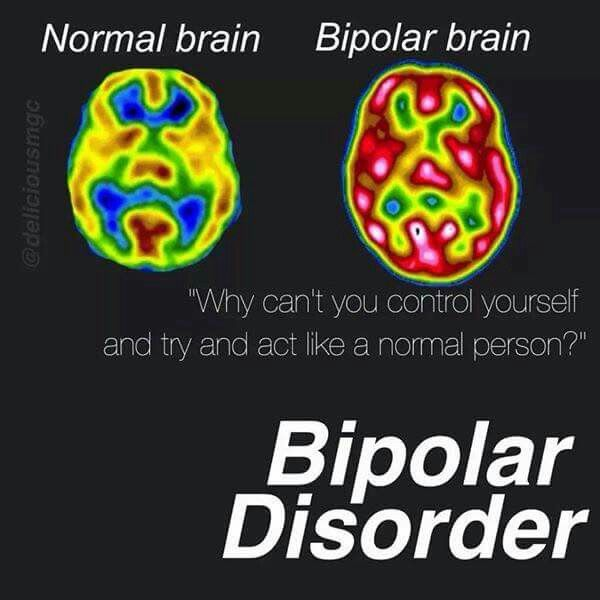 Knowing people to me with this disorder seeing this picture it makes sense now