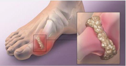 Voici comment réduire les douleurs de la goutte de manière naturelle...