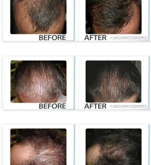 Gdzie Kupic Groei360? jest jednym z pierwszych produktów innowacyjnych Lakier do włosów wymyślonych leczyć podstawowe przyczyny wypadania włosów dla mężczyzn i kobiet. Groei360 zawiera unikalne rozwiązanie,
