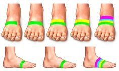 taping the foot to help with shin splint pain...SO glad I found this!