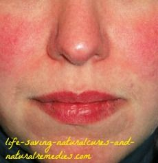 """Discover the little-known (but extremely powerful) natural remedy for rosacea, along with other leading-edge rosacea treatments in this """"must read"""" article..."""