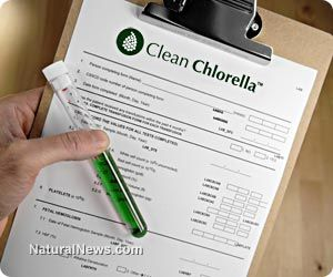 Research proves chlorella has antioxidative effects, 'should be included as a key component of a healthy diet'