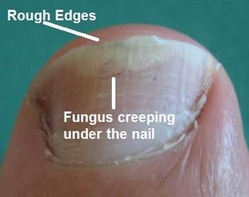 Best Natural Way To Treat Toenail Fungus