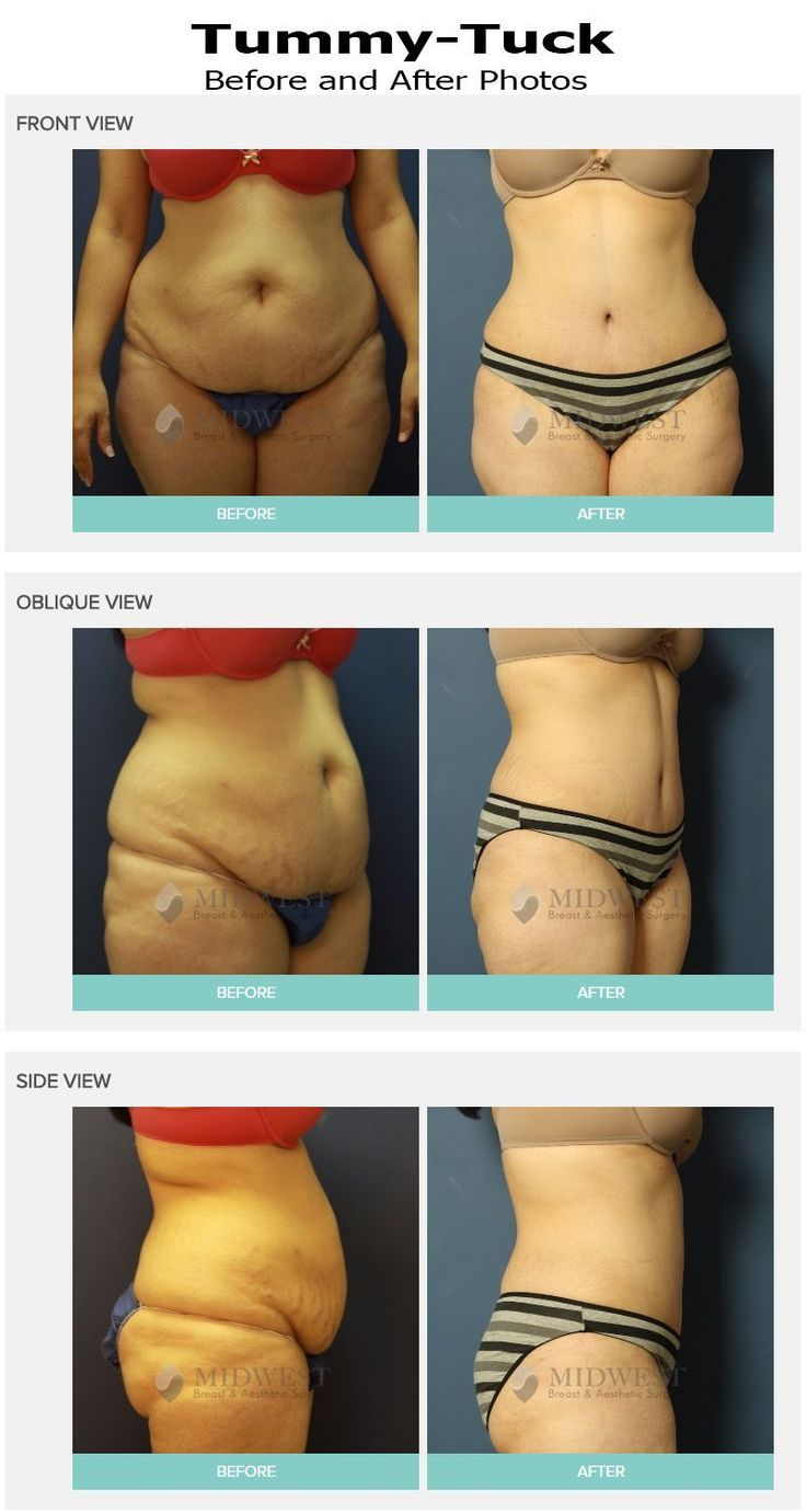 abdominoplasty bodyprocedures abdominoplasty tummytuck