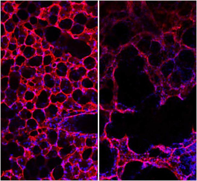 Helmholtz scientists were able to elucidate a mechanism leading to degeneration (right) of formerly healthy lung tissue (left).Credit: Helmholtz Zentrum München Smoke from cigarettes blocks self-healing processes in the lungs and consequently can lead to chronic obstructive pulmonary disease (COPD). Researchers at the Helmholtz Zentrum München, partner in the German Center for Lung Research (DZL), and their international colleagues have reported this in the 'American Journal of…