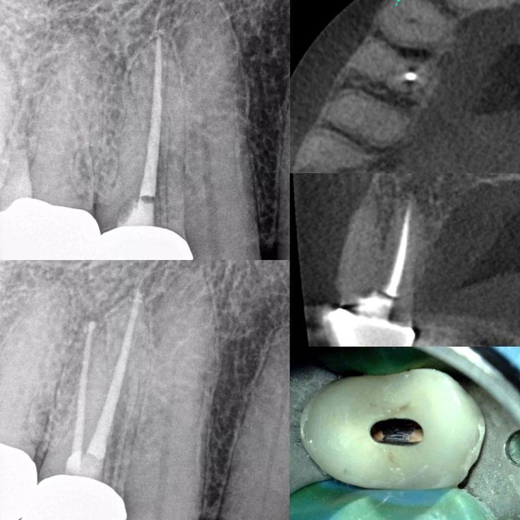 Retreatment of symptomatic apical periodontitis of tooth #5: prior root canal done 4 years ago by another endodontist. Calcified buccal canal CBCT and microscope very helpful in locating the untreated canal. Both canals treated minimally invasive access.  . . . #rootcanal #retreatment #endodontist #getitdone #endodontia #endodoncia #endolove #dentist #dentistlife #dentalassistant #dentalhygienist #gethealthy #helpingpeople #saveteeth