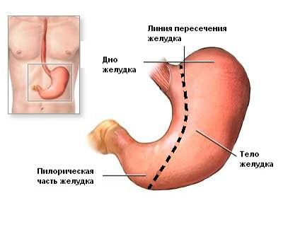 Рукавная гастрэктомия Рукавная гастрэктомия — лапароскопическая вертикальная продленная эксцизионная гастропластика, предложена как самостоятельный метод бариатрической хирургии. Такая сложная операция проводится в основном у людей страдающих супер-ожирением, и имеющим вес более 180кг. После проведения такой операции пациенты теряли до 80% избыточной массы тела, т.е. эффект резекции желудка превосходил эффект основной операции (шунтирования желудка), но при этом[...]