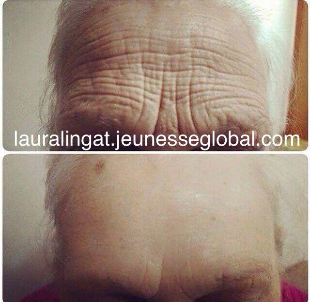 Amazing Results with #InstantlyAgeless. No #botox No #plasticsurgery needed