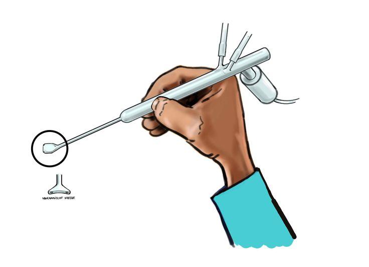 Technical Eyesurgeryinstrument Sketch