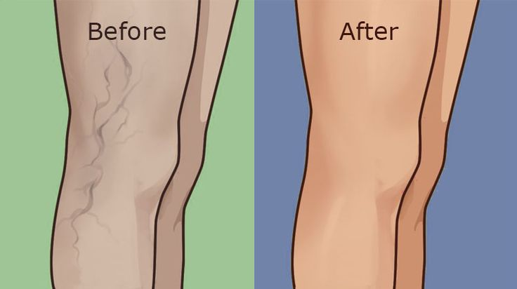 The term varicose veins is used for veins which are weakened, enlarged, and visible under the skin surface. These veins are normally blue or dark purple. This is a common condition which can be the result of a number of issues, including pregnancy, obesity, prolonged standing, straining, age, genetics, etc. At the beginning of their …