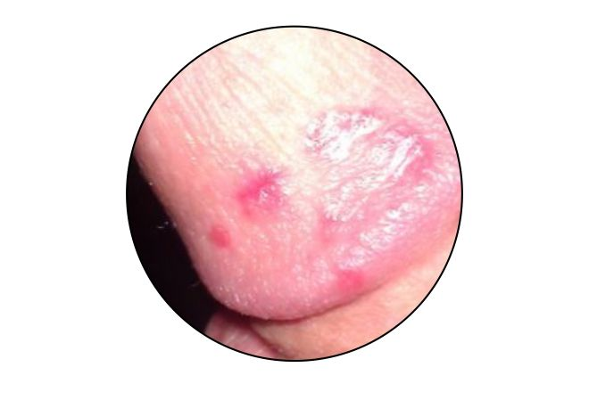 Eczema on Penis, Burning, Red, Painful, Swollen, Blisters, What to do at Home, Remedy, Treatment