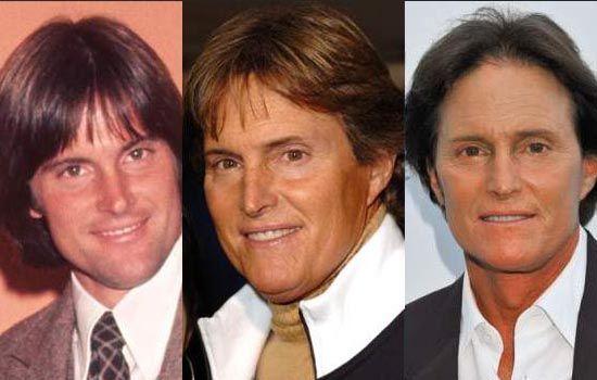 Bruce Jenner gets a nose surgery to look more feminine  Read more: http://www.bellenews.com/2015/03/17/entertainment/bruce-jenner-gets-a-nose-surgery-to-look-more-feminine/#ixzz3UgTjuyhO Follow us: @bellenews on Twitter | bellenewscom on Facebook
