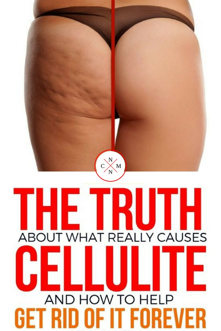 The Truth About what Really Causes Cellulite and How to Help Get Rid of it Forever