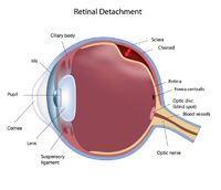 Retinal detachment by Vission Eyes located in Juhu, Mumbai, India with best eye care doctors, specialists and surgeons at our clinic and hospital for operations.