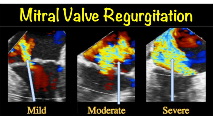 This article by a cardiac valve specialist is about mitral valve regurgitation (mitral insufficiency), with information on the condition and treatments