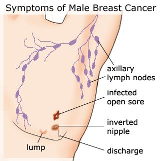 That Famous male breast cancer