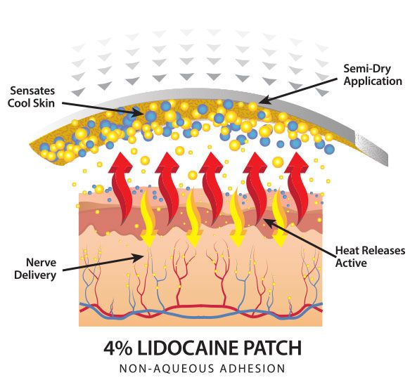 Lidocaine Patch Technology