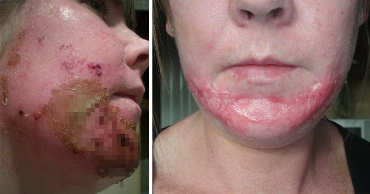 Mum scarred for life by beauty clinic who put too much acid in a chemical face peel | Metro News http://metro.co.uk/2017/07/23/mum-scarred-for-life-by-beauty-clinic-who-put-too-much-acid-in-a-chemical-face-peel-6800555/?utm_campaign=crowdfire&utm_content=crowdfire&utm_medium=social&utm_source=pinterest