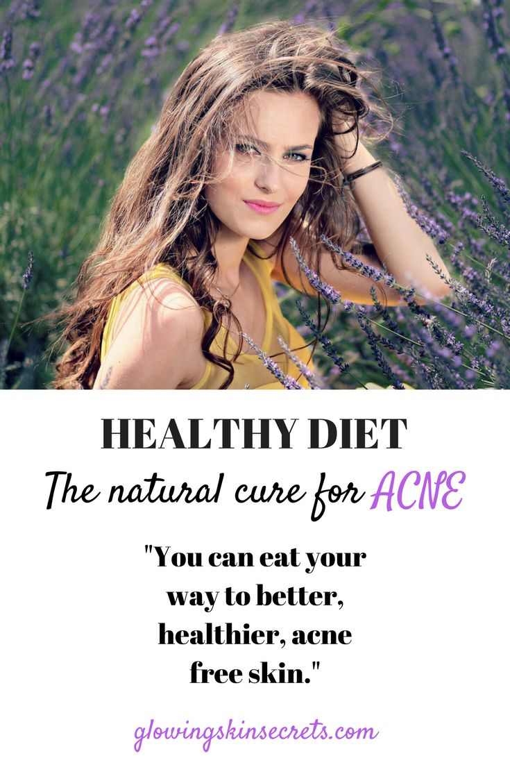 The natural cure for acne: Healthy diet.