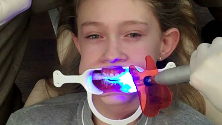 How Much Do Braces Cost For Kids – Average Cost - http://emergencydentalcaretips.com/how-much-do-braces-cost-for-kids-average-cost/ Learn about average cost of braces 2015 how much do braces cost with insurance average cost of braces per month how much do braces cost a month for adults average cost of invisalign braces cost in india how to get braces for free