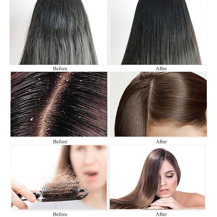 Anti-Hair Loss Shampoo, Hair Regrowth Shampoo, Natural Old Ginger Hair Care Shampoo Effective Solution for Hair Thinning  #hairhack #naturalthinninghairsolutions