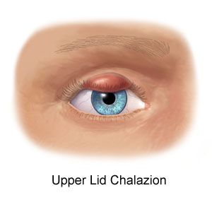 What Do You Mean By Chalazion?  There are many people who have been diagnosed with a disorder of vision organ termed as chalazion which is described as a cyst that takes place over the lower or upper portion of the vision organ.  http://xldrugstoreonline.blogspot.in/2014/02/what-do-you-mean-by-chalazion.html