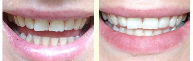 Instant #Teeth Whitening In #Gurgaon http://thedentalroots.com/instant-teeth-whitening-in-gurgaon/