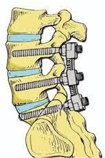 Τα σύγχρονα συστήματα σπονδυλοδεσίας, η εξειδίκευση των χειρουργών της σπονδυλικής στήλης και η νευροπαρακολούθηση κατά τη διάρκεια του χειρουργείου με ειδικά μηχανήματα από εξειδικευμένο ιατρό, έχουν περιορίσει στο ελάχιστο τον κίνδυνο επιπλοκών.