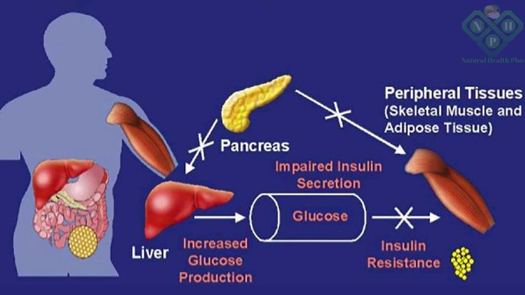 How to cure diabetes | 3 Important Things Every Diabetic Should Know About!