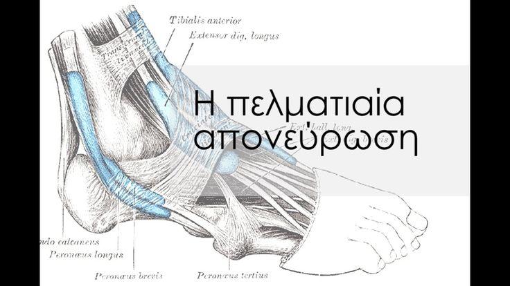 Τι είναι η πελματιαία απονεύρωση