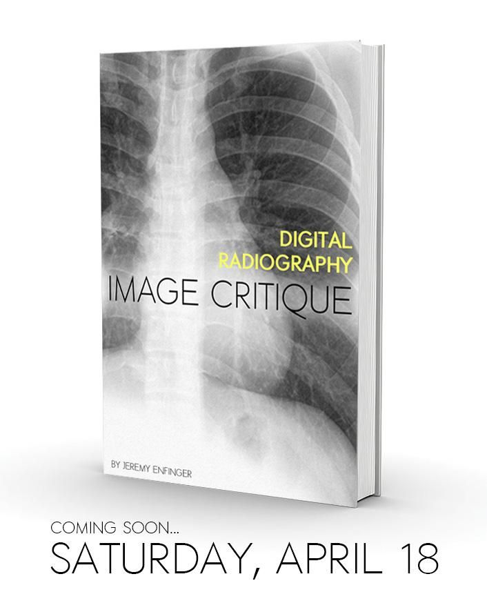 56 best radiographic positioning images on pinterest radiology get my ebook free on saturday april 18 by signing up for my mailing list fandeluxe Choice Image