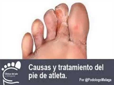 Como se llama el médico cura el hongo de las uñas en los pies