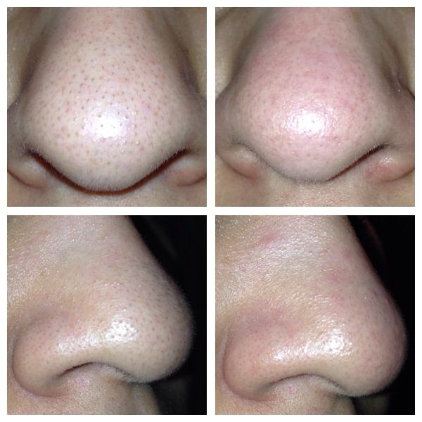 blackhead removal tool before and after. before \u0026 after - diy blackheads treatment 1. wash your face 2. use a blackhead removal tool and r