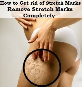 Get Rid Of Stretch Marks Naturally In Just  Weeks