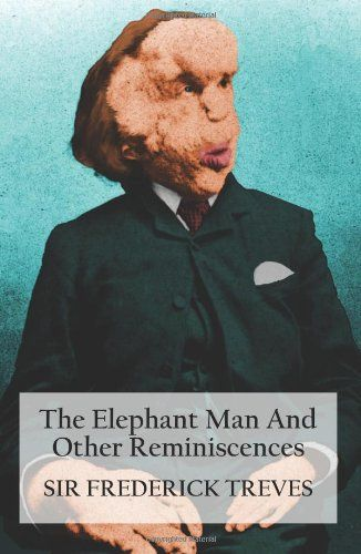 """Joseph Carey Merrick lived his life in Victorian England as a """"human novelty exhibit"""". As the infamous """"Elephant Man"""" Merrick's grotesque appearance was sufficent to incite public outrage; he made women faint at the sight of him. Beneath his hideous deformities, however, lay the spirit of a sensitive, albeit wounded soul, with intelligence and respect for other living things, including those who'd wronged him."""