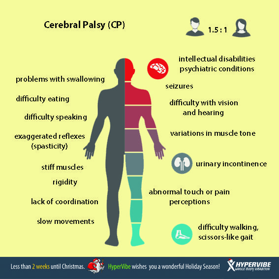 Anatomy of cerebral palsy